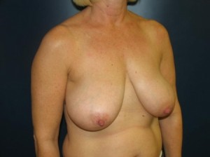 Breast Lift by Dr. Leveque