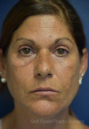 Fat Transfer to Face by Dr. Leveque