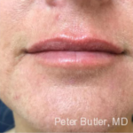 Fillers by Dr. Butler
