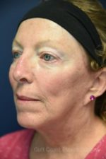 Facelift by Dr. Leveque