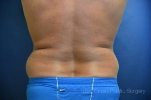 Liposuction by Dr. Leveque