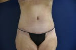 Tummy Tuck by Dr. Leveque