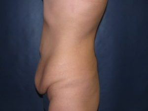 Body Lift after Major Weight Loss by Dr. Leveque