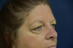 Upper Eyelid Lift by Dr. Leveque