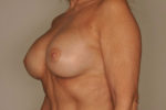 Breast Augmentation by Dr. Patterson