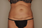 Tummy Tuck by Dr. Patterson