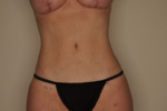 Liposuction by Dr Patterson