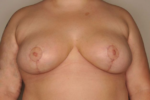 Breast Reduction by Dr. Patterson