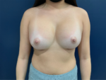 Breast Augmentation by Dr. Leveque