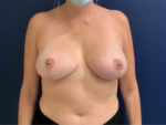 Breast Reduction by Dr. Leveque