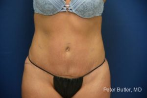 Tummy Tuck by Dr. Butler