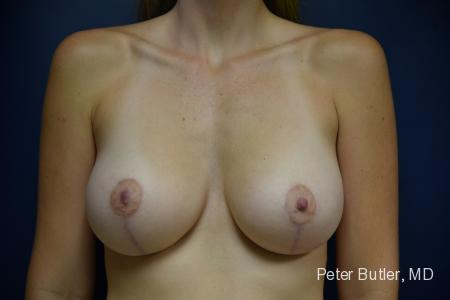 Breast Augmentation with Lift by Dr. Butler