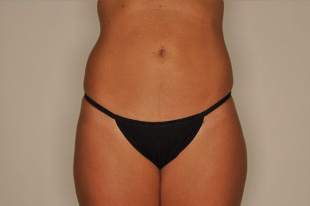 Liposuction By Dr. Patterson