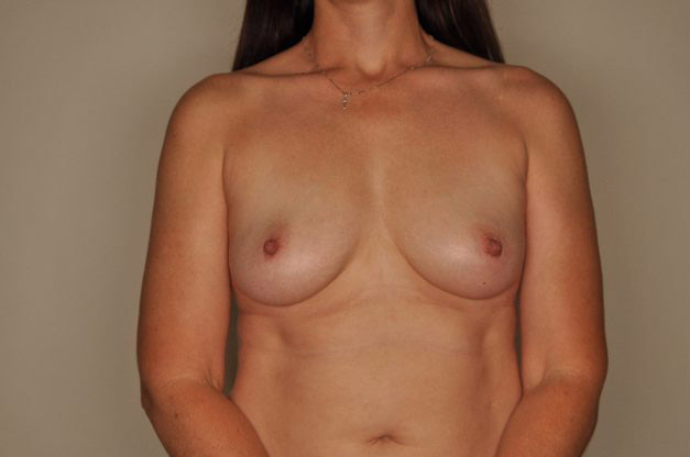 Breast Reconstruction By Dr. Patterson