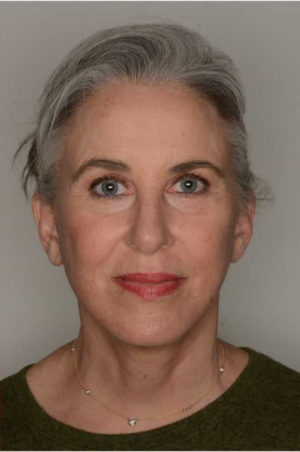 "Facelift by Dr. Patterson"" width="